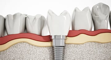 dental implants blackburn