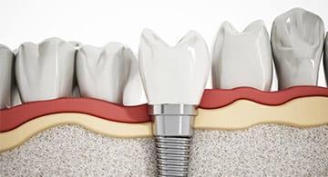 Dental Implants in Blackburn