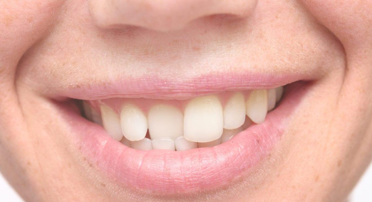 Crooked Teeth Blackburn Treatment