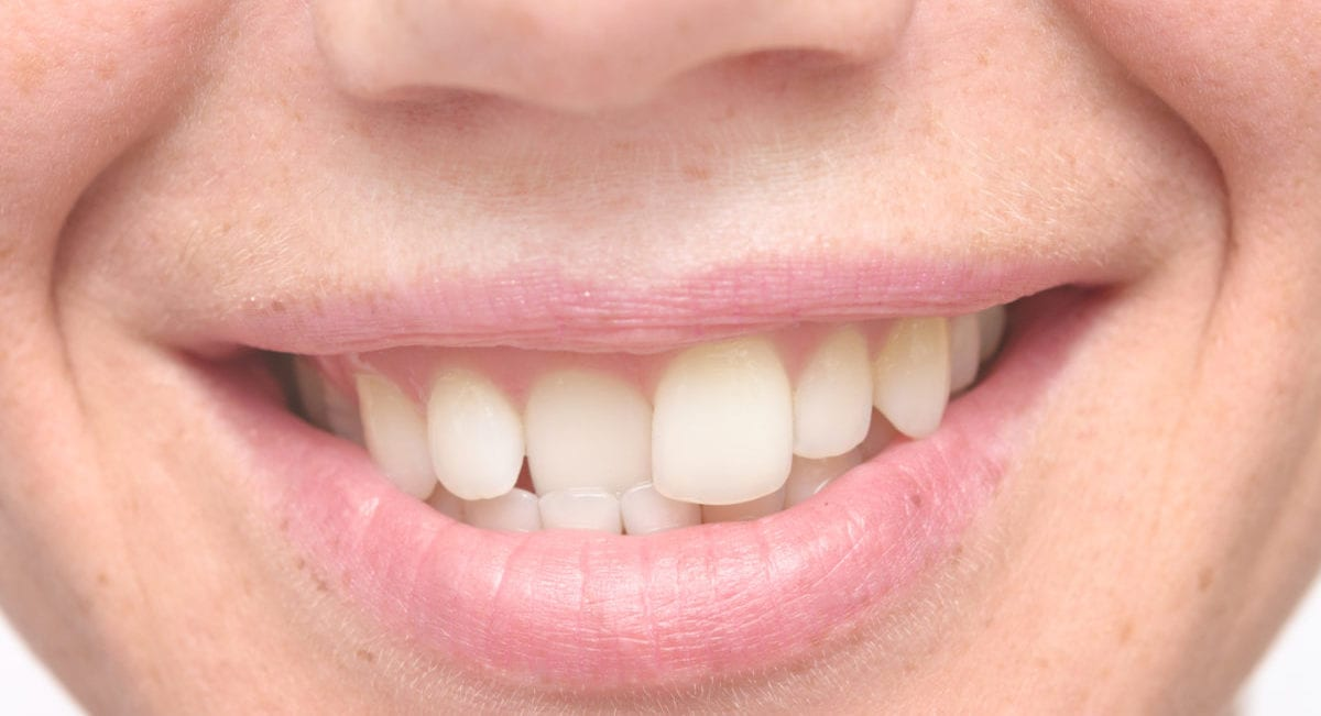 Crooked Teeth Treatment in Blackburn