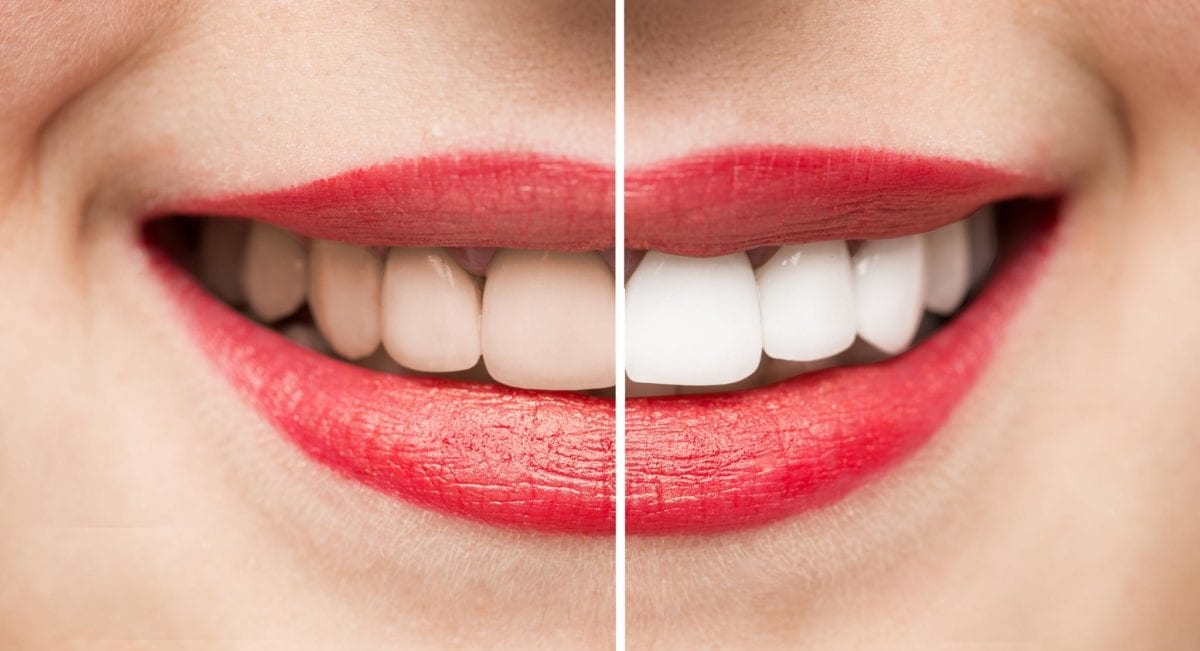 Teeth Whitening Treatment in Blackburn