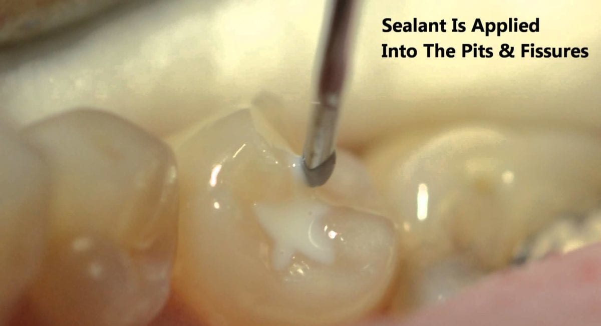 Fissure Sealants Hearts Dental