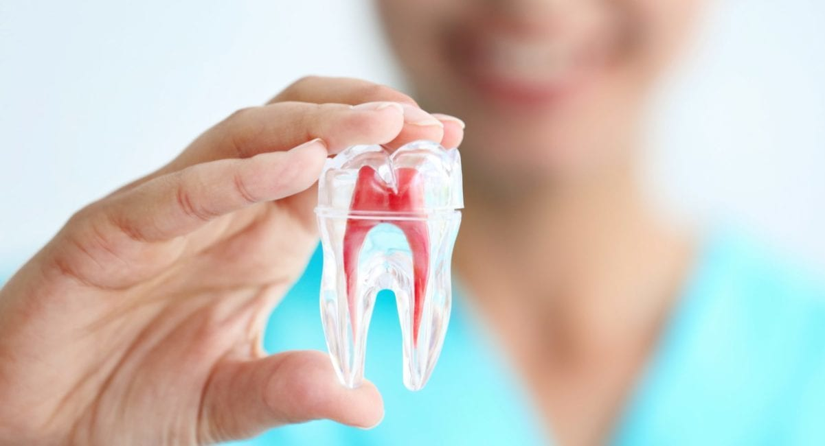 root canal treatment Blackburn
