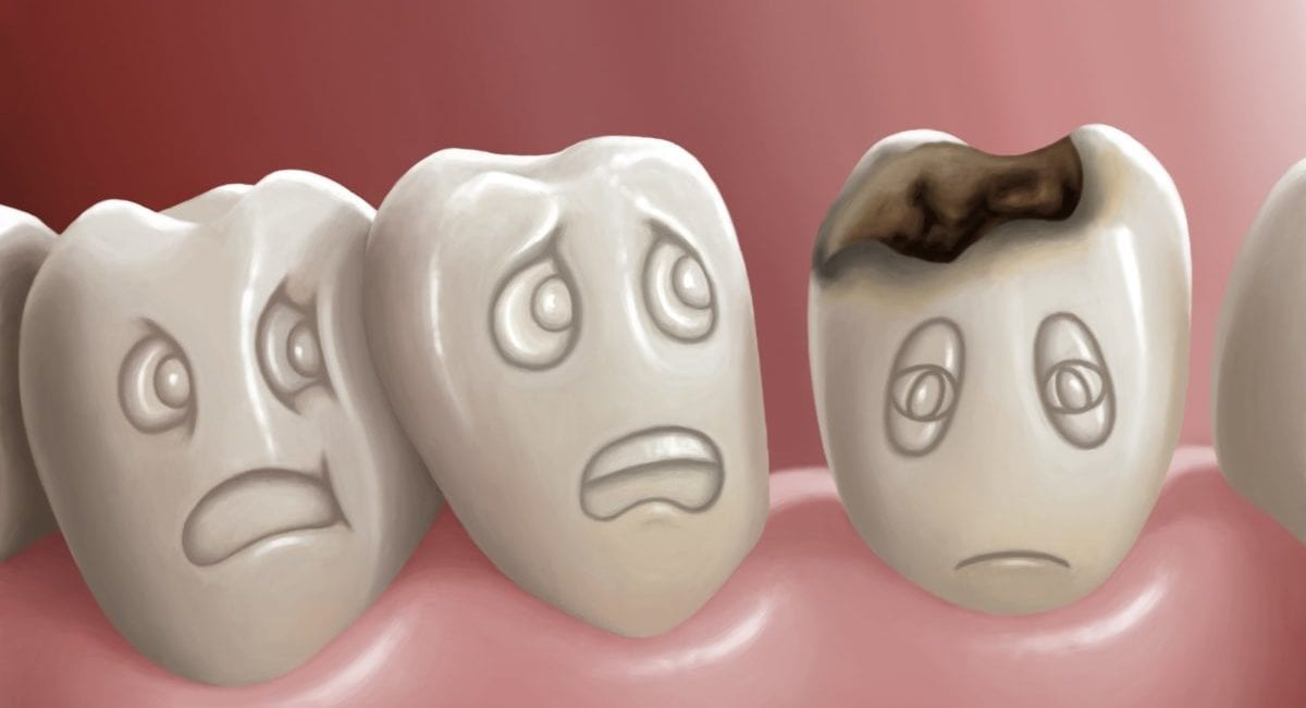 Tooth Decay Treatment in Blackburn