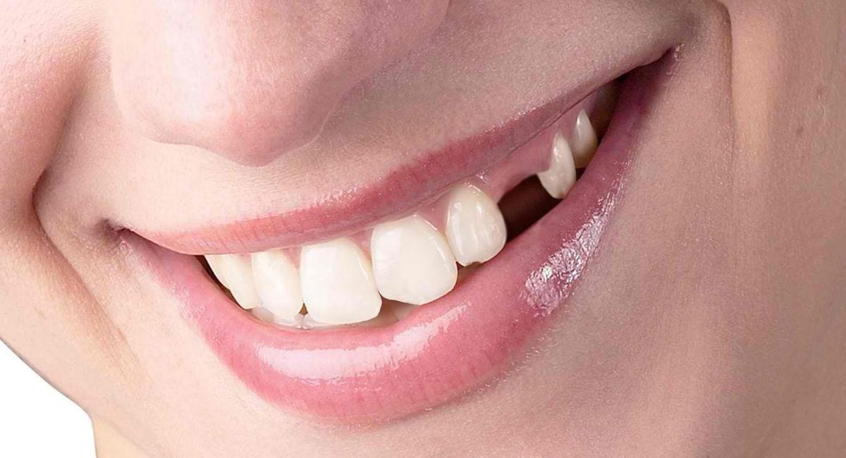Missing Teeth Treatment Blackburn
