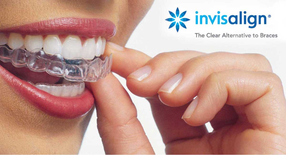 Checkup & clean + Free Invisalign Consultation - special banner