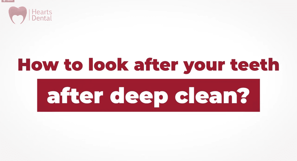 How to look after your teeth after deep clean